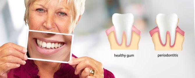 Periodontal maintenance – Spring Hill Dental Associates