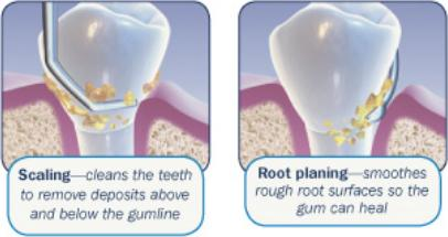 Periodontal Scaling And Root Planing Spring Hill Dental